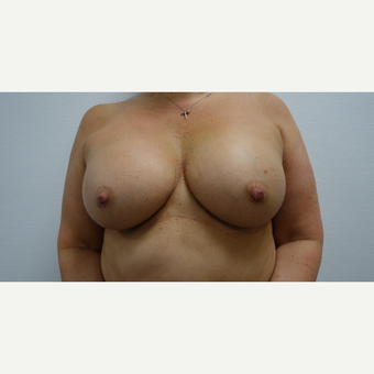 35-44 year old woman treated with Breast Augmentation after 3031287