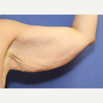 41 year old woman treated with an arm lift before 3054103
