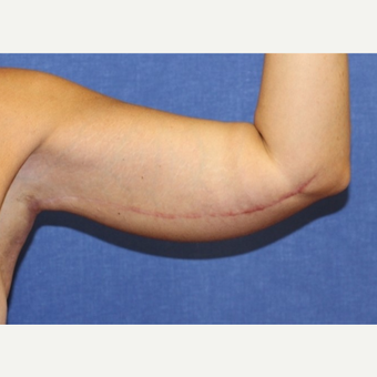 41 year old woman treated with an arm lift after 3054103