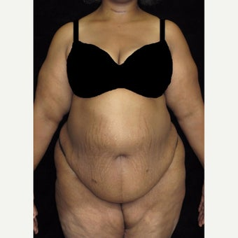 45-54 year old woman treated with Tummy Tuck before 2476981