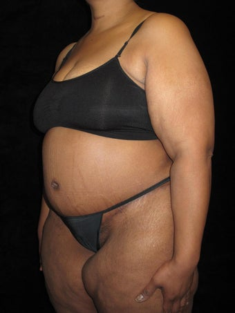 45-54 year old woman treated with Tummy Tuck 2476981