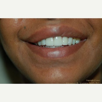 35-44 year old woman treated with Lip Reduction before 2444222