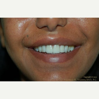35-44 year old woman treated with Lip Reduction after 2444222