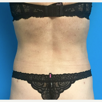 55-64 year old woman treated with Liposuction after 3164813