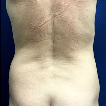 55-64 year old woman treated with Liposuction before 3164813