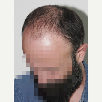 35-44 year old man treated with Hair Transplant before 3522635