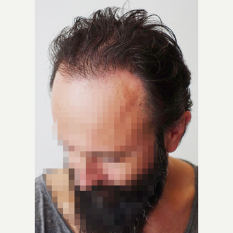 35-44 year old man treated with Hair Transplant after 3522635