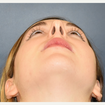 18-24 year old woman treated with Rhinoplasty before 3503441