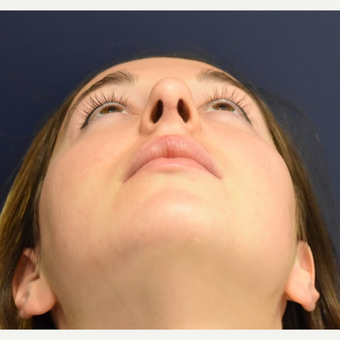 18-24 year old woman treated with Rhinoplasty after 3503441