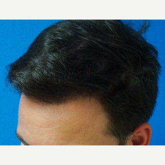 35-44 year old man treated with FUE Hair Transplant after 1760216