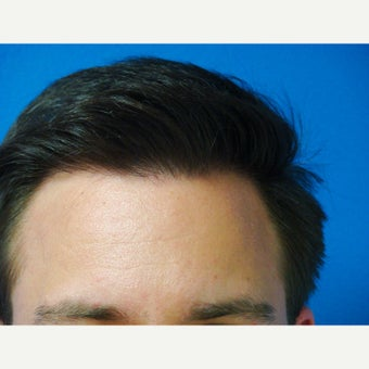 35-44 year old man treated with FUE Hair Transplant 1760216