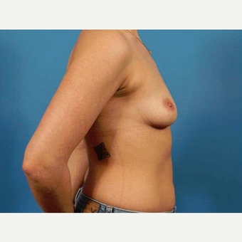 25-34 year old woman treated with Breast Implants before 3787041