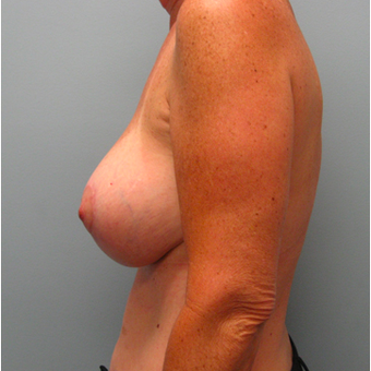 53 year old woman treated with Breast Lift with Implants after 3468111