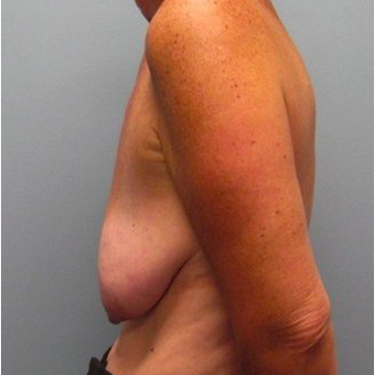 53 year old woman treated with Breast Lift with Implants before 3468111