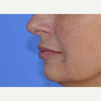 45-54 year old woman treated with Lip Augmentation after 3240216