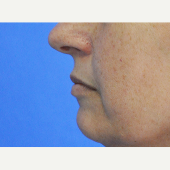 45-54 year old woman treated with Lip Augmentation before 3240216