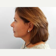 55-64 year old woman treated with Facelift after 3500866