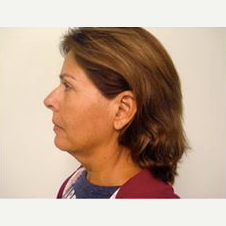 55-64 year old woman treated with Facelift before 3500866