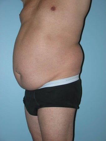 Male Abdominoplasty 1286977