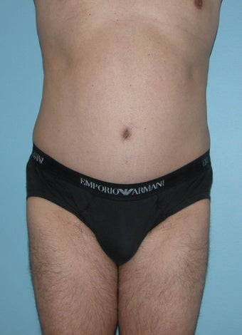 Male Abdominoplasty after 1286977