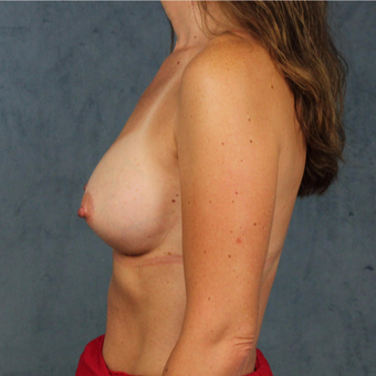 42 year old female with natural breast augmentation with silicone gel implants after 3147908