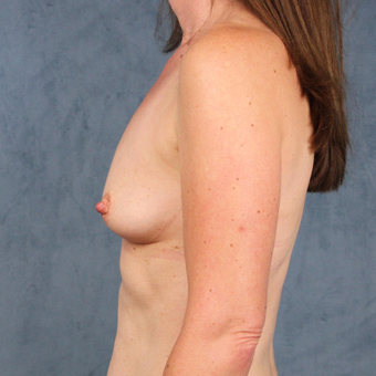 42 year old female with natural breast augmentation with silicone gel implants before 3147908