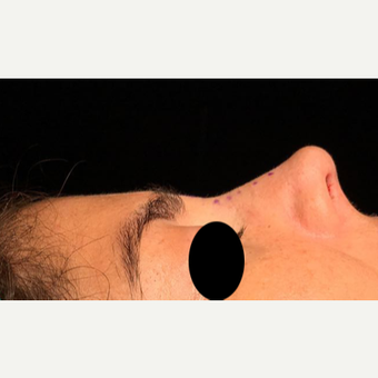 25-34 year old woman treated with Rhinoplasty after 3211278