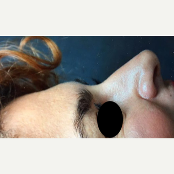 25-34 year old woman treated with Rhinoplasty before 3211278