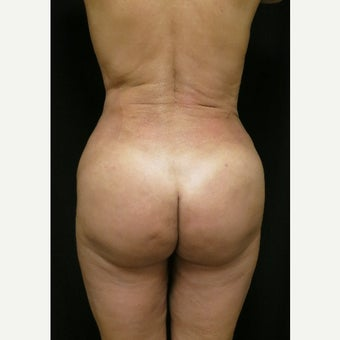 45-54 year old woman treated with Brazilian Butt Lift after 1536204