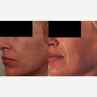 Acne Scar Removal for White Scars before 1909776
