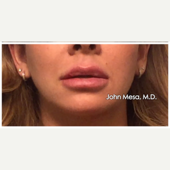 25-34 year old woman treated with Juvederm  for Lip Augmentation after 3058990