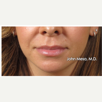 25-34 year old woman treated with Juvederm  for Lip Augmentation before 3058990