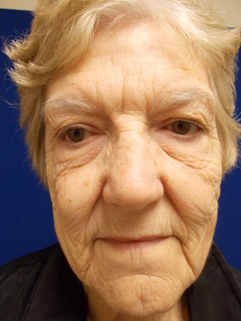 Short Scar Face Lift on 78 Year Old Woman 14 Days After Surgery before 905203