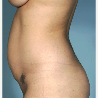 25-34 year old woman treated with Tummy Tuck 1834550