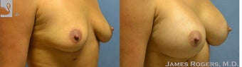 25-34 year old woman treated with a Breast Augmentation 2051348
