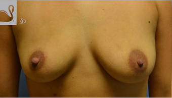 25-34 year old woman treated with a Breast Augmentation before 2051348