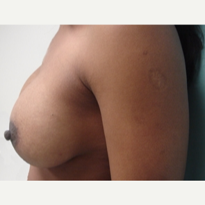 35-44 year old woman treated with Breast Augmentation after 3168081