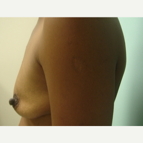 35-44 year old woman treated with Breast Augmentation before 3168081