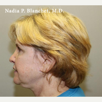 25-34 year old woman treated with Facelift before 3032770