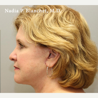25-34 year old woman treated with Facelift after 3032770