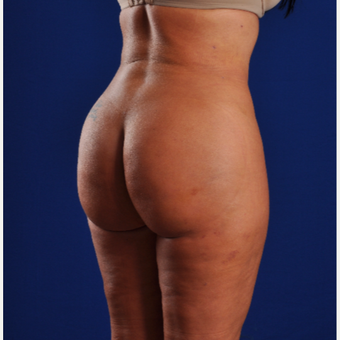 25-34 year old woman treated with Smart Lipo after 3629860