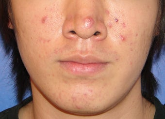 Photodynamic Therapy for Acne before 123686