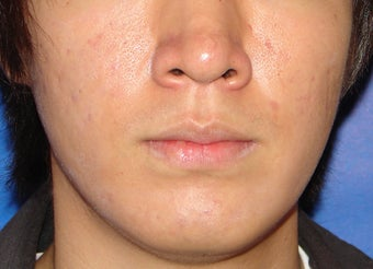 Photodynamic Therapy for Acne after 123686