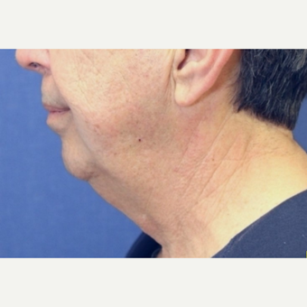 67 year old man treated with Chin Surgery before 3104463