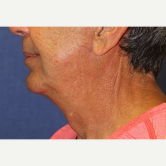 67 year old man treated with Chin Surgery after 3104463