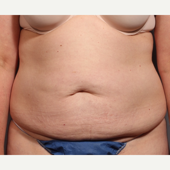 35-44 year old woman treated with Tummy Tuck before 3319903