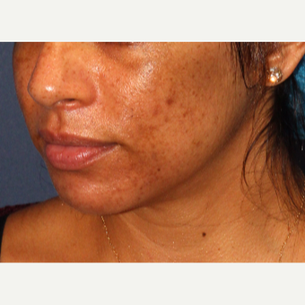 25-34 year old woman treated with Acne Treatment before 3230349