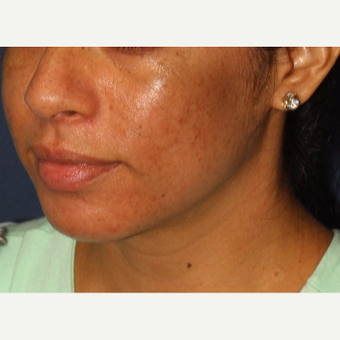 25-34 year old woman treated with Acne Treatment after 3230349