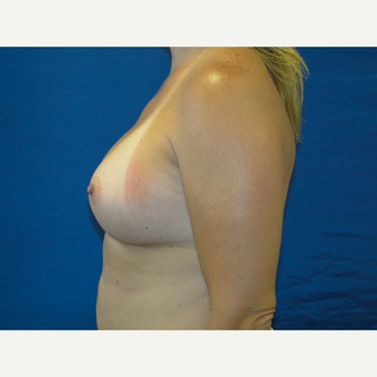 450 cc Silicone Breast Implants after 3623151