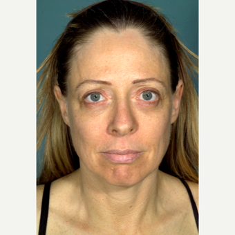 45-54 year old man treated with Facelift before 3097456